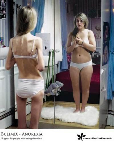 http://tumusiica.files.wordpress.com/2007/09/anorexia-y-bulimia1.jpg